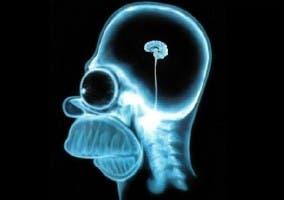 Cerebro Homer