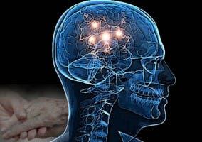 Un trastorno neurodegenerativo