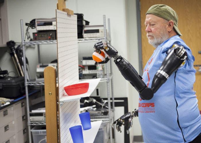 Prótesis robóticas para los brazos