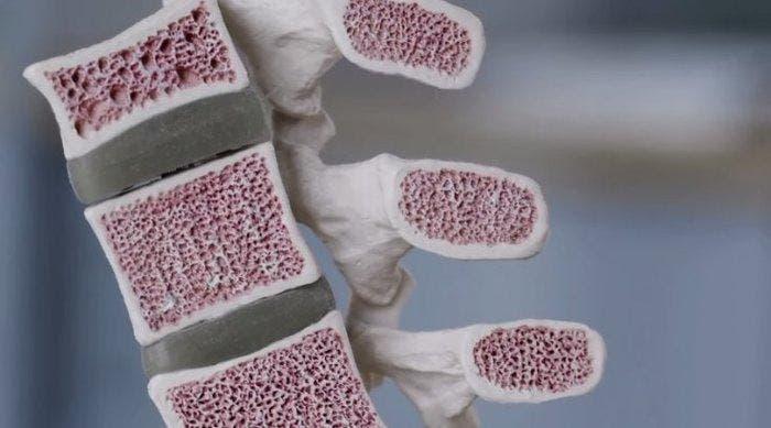 Microlattice huesos