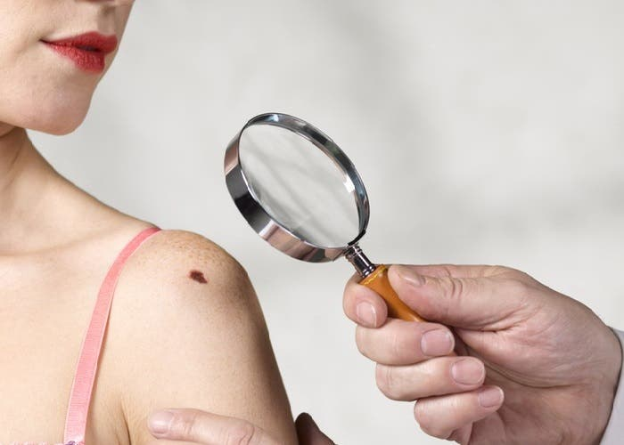 algoritmo dectaria cancer con la precision de un dermatologo